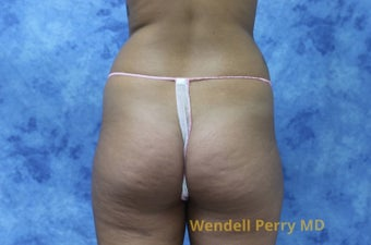 18-24 year old woman treated with Brazilian Butt Lift before 3341073
