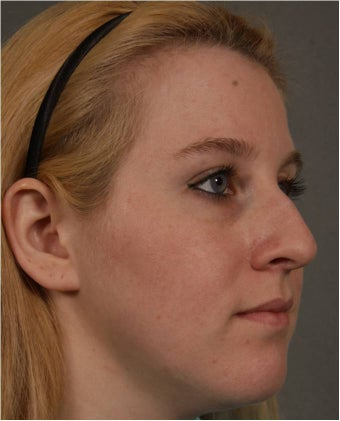 25 year old female with who wants to treat her nasal bridge without surgery via an injectable rhinoplasty