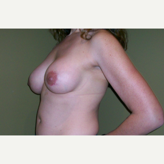25-34 year old woman treated with Bennelli Breast Lift after 3624386
