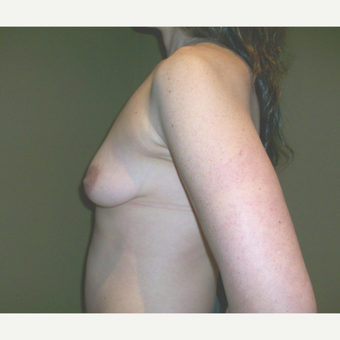 25-34 year old woman treated with Bennelli Breast Lift before 3624386