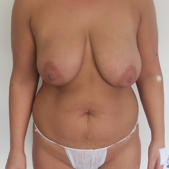 35-44 year old woman treated with Mommy Makeover before 3541341