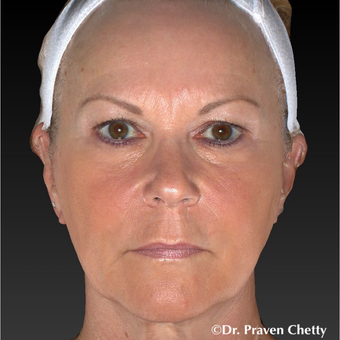 55-64 year old woman treated with Non Surgical Face Lift after 3406040