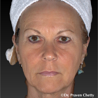55-64 year old woman treated with Non Surgical Face Lift before 3406040