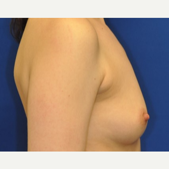 25-34 year old woman treated with Breast Augmentation before 3849243