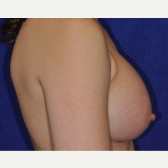 25-34 year old woman treated with Breast Augmentation after 3849243