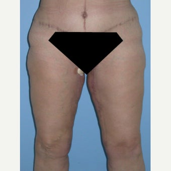 35-44 year old woman treated with Thigh Lift