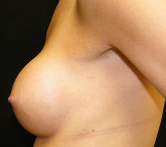 Breast Augmentation after 955321