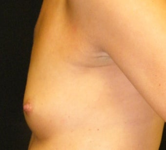 Breast Augmentation before 955321