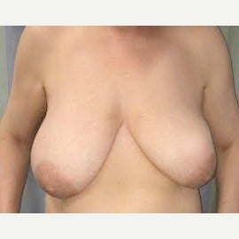 35-44 year old woman treated with Breast Reduction before 1834772