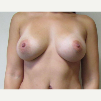 30 year old woman underwent Breast Augmentation with 380 cc saline implants after 3467978