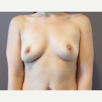 30 year old woman underwent Breast Augmentation with 380 cc saline implants before 3467978