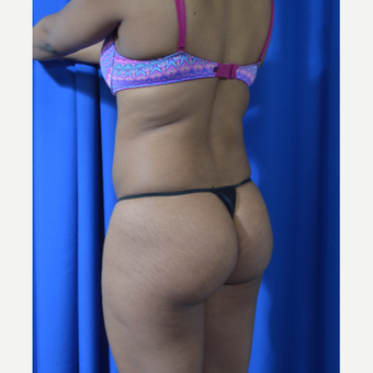 25-34 year old woman treated with Brazilian Butt Lift before 3418291