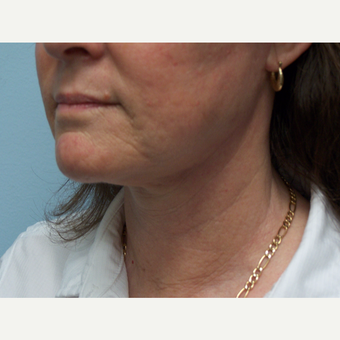 55-64 year old woman treated with Facelift and Necklift