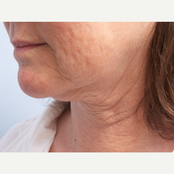 55-64 year old woman treated with Facelift and Necklift before 3578064