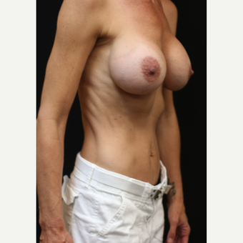 42 year old woman treated with Breast Implant Revision after 3070940