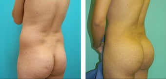 Brazilian Butt Lift Before & After before 1110795