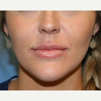 25-34 year old woman treated with Lip Augmentation after 3251812