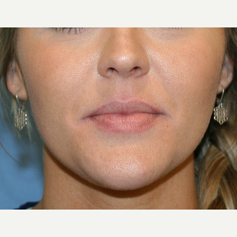 25-34 year old woman treated with Lip Augmentation before 3251812