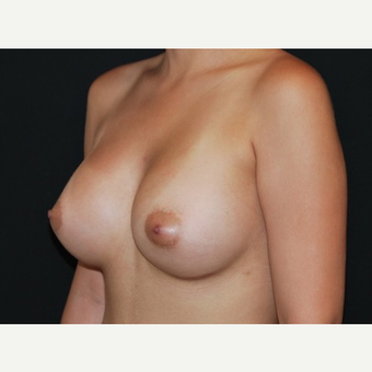 25-34 year old woman treated with Breast Implants after 3650960
