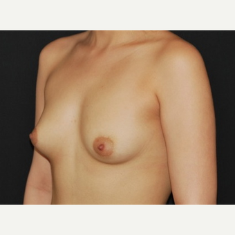 25-34 year old woman treated with Breast Implants before 3650960