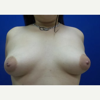 35-44 year old woman treated with FTM Chest Masculinization Surgery before 2256791