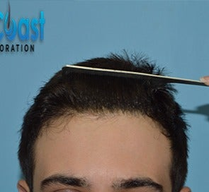 25-34 year old man treated with FUE Hair Transplant after 3604751