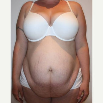 35-44 year old woman treated with Tummy Tuck before 1706246