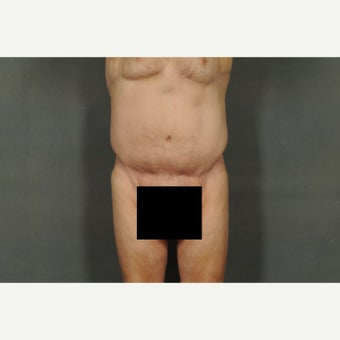 65-74 year old man treated with Tummy Tuck after 1671541