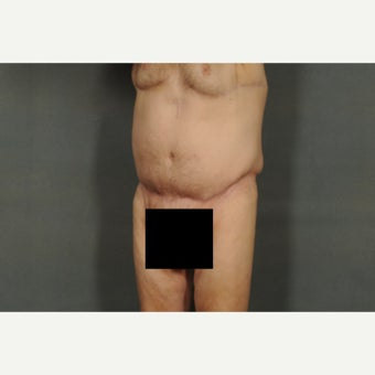 65-74 year old man treated with Tummy Tuck 1671541