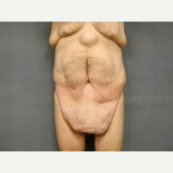 65-74 year old man treated with Tummy Tuck before 1671541