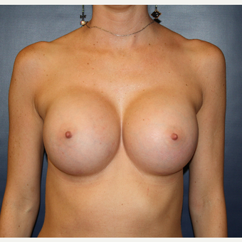 25-34 year old woman treated with Breast Augmentation after 2725607