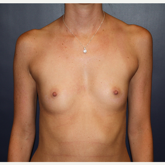 25-34 year old woman treated with Breast Augmentation before 2725607