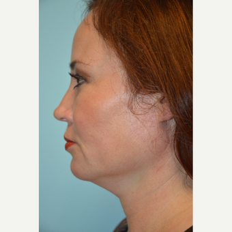 35-44 year old woman treated with Kybella before 3663490