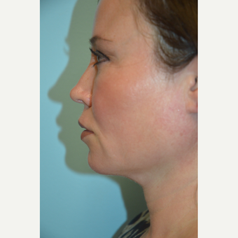 35-44 year old woman treated with Kybella after 3663490