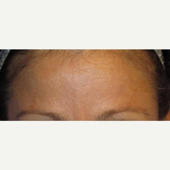 38 year old woman treated with Botox after 3670325
