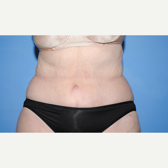 65-74 year old woman treated with Tummy Tuck after 3763386