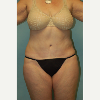 "58 year old woman, 5'6"", 188 lbs. four months after lipoabdominoplasty after 3771599"