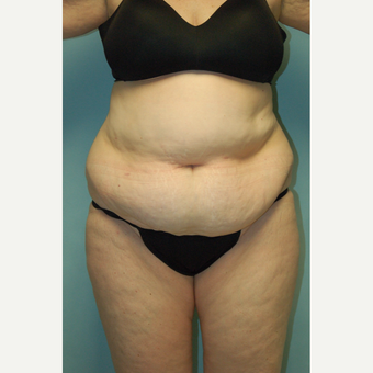 "58 year old woman, 5'6"", 188 lbs. four months after lipoabdominoplasty before 3771599"