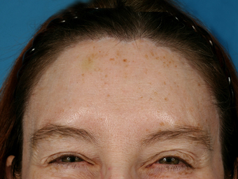 Forehead Lift after 1427360
