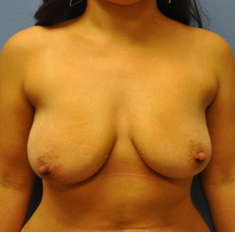 Breast Augmentation, Breast Implants, Mastopexy, Breast Lift before 1166185