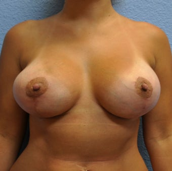 Breast Augmentation, Breast Implants, Mastopexy, Breast Lift after 1166185