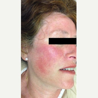 Treatment of Facial Spider Veins before 1567284