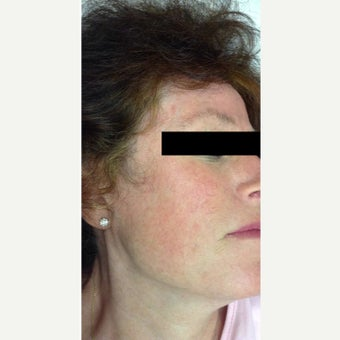 Treatment of Facial Spider Veins after 1567284