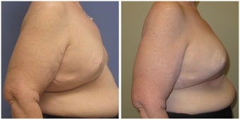Breast Revision of Breast Reconstruction 1302578