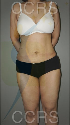 VASER lipo with mini TT - 45 yrs. old female after 636187