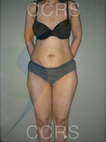 VASER lipo with mini TT - 45 yrs. old female before 636187