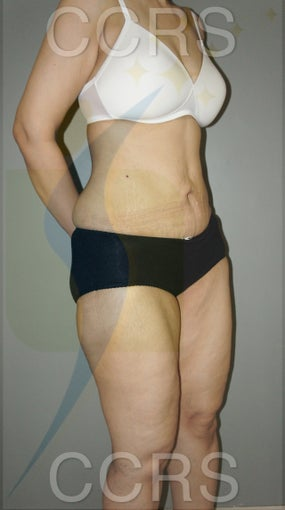 VASER lipo with mini TT - 45 yrs. old female 636187