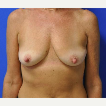 Breast Lift before 3241677