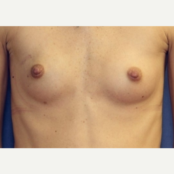 34 year old woman - Breast Reconstruction following bilateral nipple sparring mastectomies before 3041903