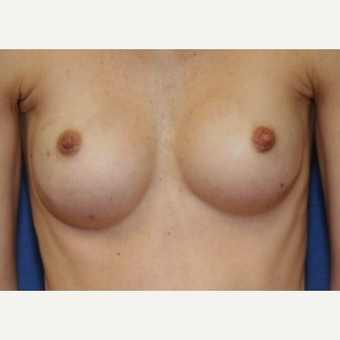 34 year old woman - Breast Reconstruction following bilateral nipple sparring mastectomies after 3041903